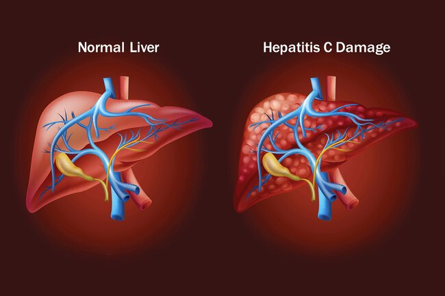 9 Symptoms of Hepatitis C That You Must Know About