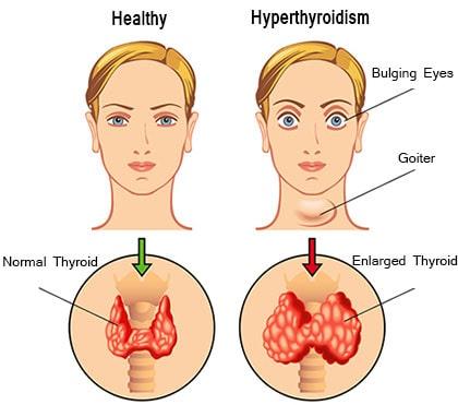 Major Signs of Hyperthyroidism